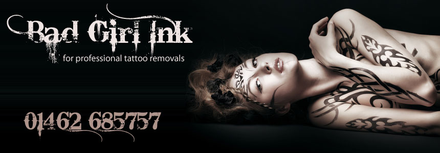 Tattoo Removals Hertford